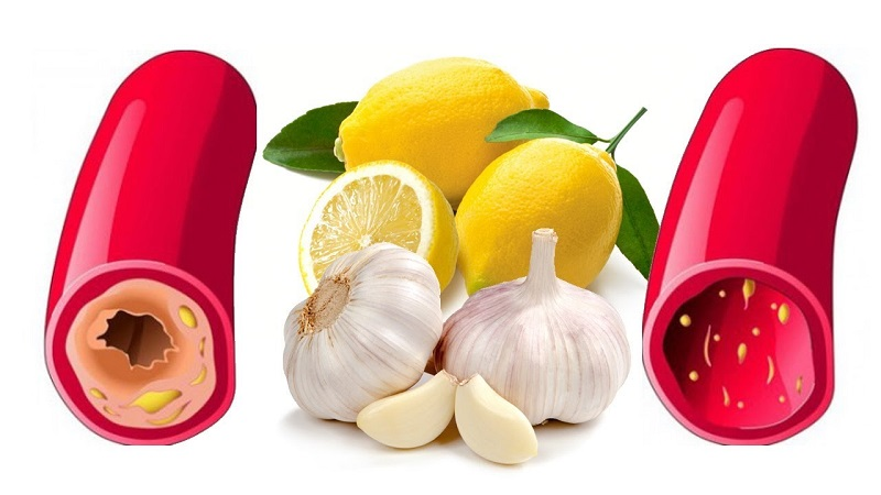 Garlic and lemon are still foods that lower cholesterol